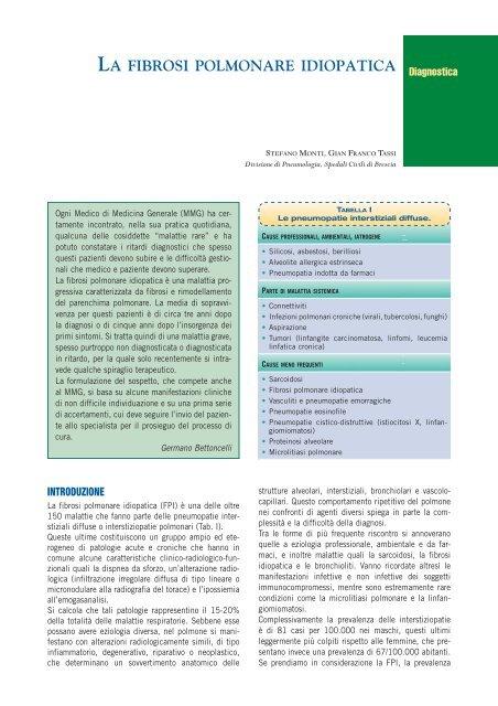 perdita di peso di fibrosi polmonare
