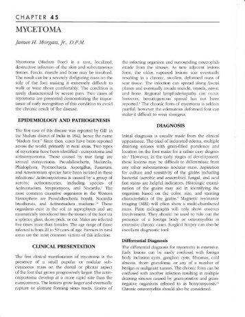 MYCETOMA - The Podiatry Institute