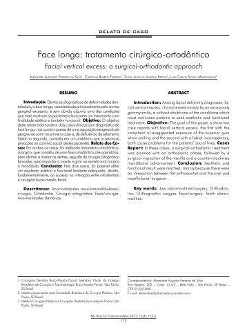 Face longa: tratamento cirúrgico-ortodôntico - ABCCMF