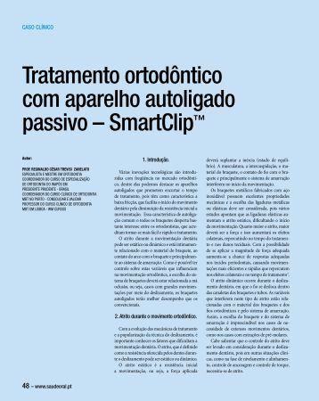 Tratamento ortodôntico com aparelho autoligado passivo ...