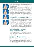 Sistema di mini viti per ancoraggio ortodontico - Orteam - Page 5