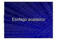 9. Esofago acalasico