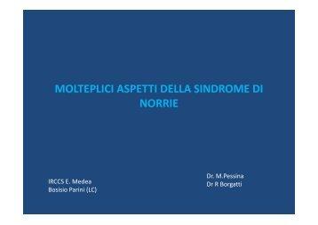 MOLTEPLICI ASPETTI DELLA SINDROME DI NORRIE - E. Medea