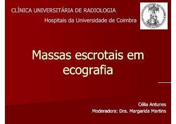 Massas escrotais em ecografia - Hospitais da Universidade de ...