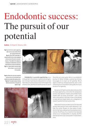 Endodontic success: The pursuit of our potential
