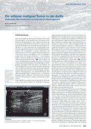 Ein seltener maligner Tumor in der Axilla - Swiss Medical Forum