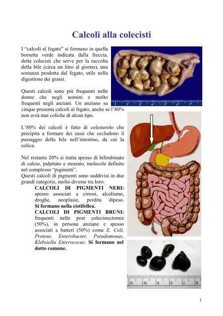 dieta per calcoli del fegato