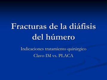 Fracturas de la diáfisis del húmero.pdf - Cirugiadelhombro.com