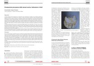 Il trattamento percutaneo della stenosi aortica. Indicazione e ... - sicoa
