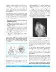 CLAVO ENDOMEDULAR DE TIBIA EN EL TRATAMIENTO DE ... - Page 2