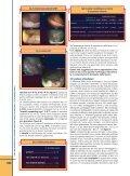 Cosa fare se si rileva una lesione polipoide o non polipoide ... - Sied - Page 4