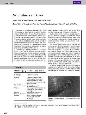 Sarcoidosis cutánea - El Médico Interactivo