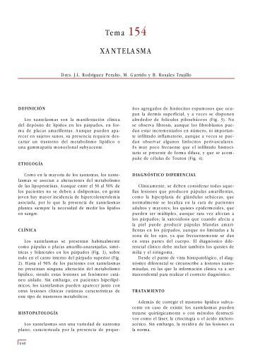 Tema 154 XANTELASMA - e-dermatosis.com