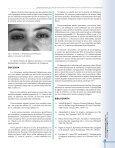 siringomas familiares - Page 3