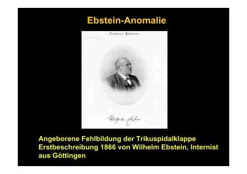 Ebstein-Anomalie