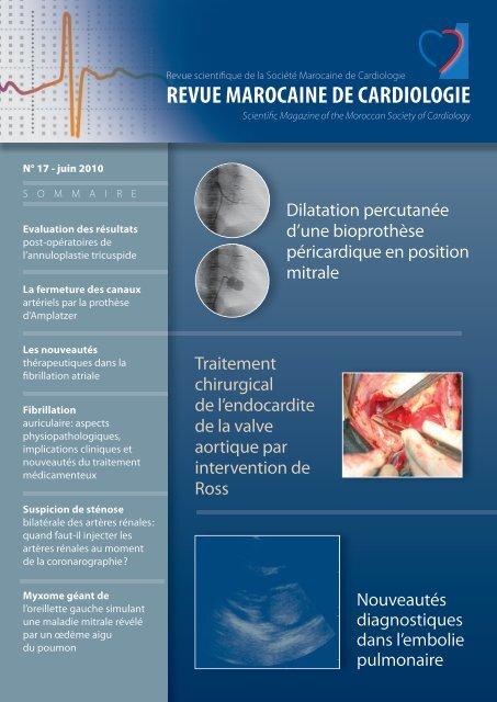 Datant d'infarctus du myocarde histologie