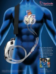 Download PDF - SynCardia Systems, Inc.
