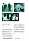 Congenital Intrathoracic Right Kidney in an Adult - Page 2