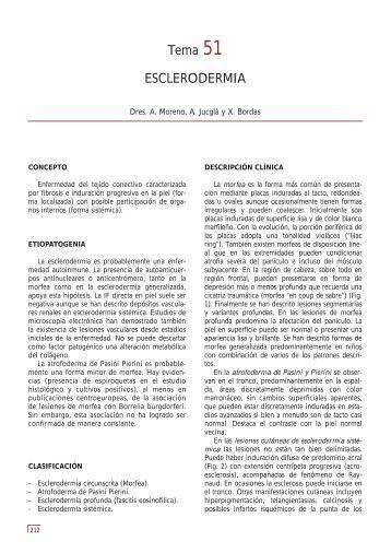 Tema 51 ESCLERODERMIA - e-dermatosis.com