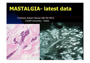 MASTALGIA- latest data