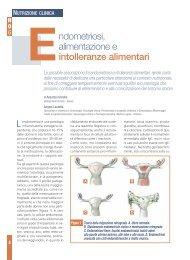Endometriosi, alimentazione ed intolleranze alimentari - Studio di ...