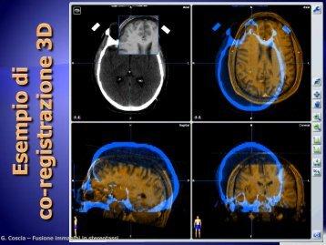 Fusione d'immagini e applicazioni in radioterapia stereotassica