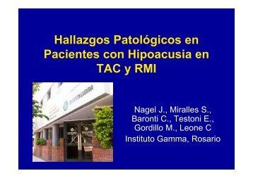 Hallazgos Patológicos en Pacientes con ... - Grupo Gamma