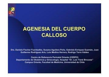 AGENESIA DEL CUERPO CALLOSO - CERPO