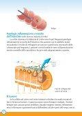 Colonoscopia - Program Svit - Page 6