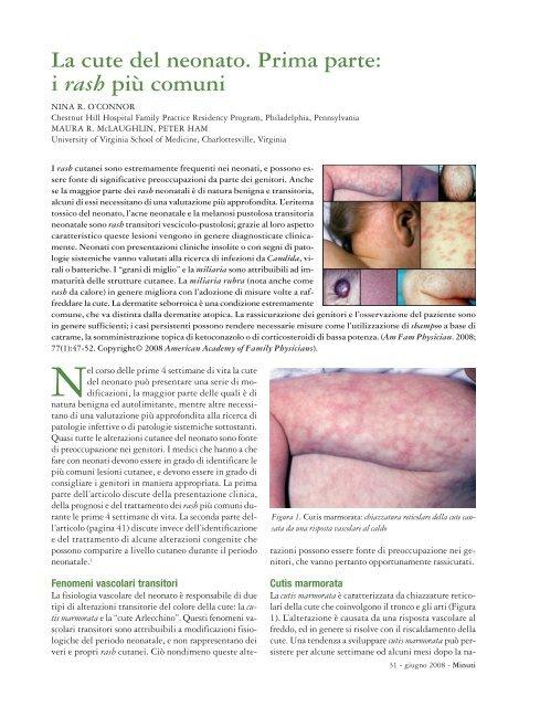 infezione cutanea al perossido di benzoile