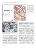 La sclerosi glomerulare meccanismi patogenetici e possibilità di ... - Page 4