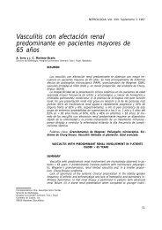 Vasculitis con afectación renal predominante en ... - Nefrología