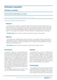 Urticaria vasculitis - Archivos de Alergia e Inmunología Clínica