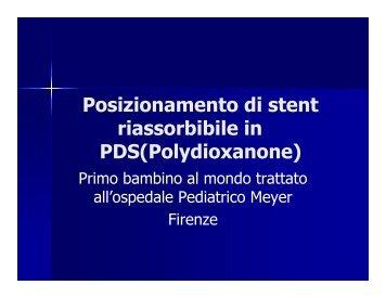 Posizionamento di stent riassorbibile in PDS - Dott. Lorenzo Mirabile