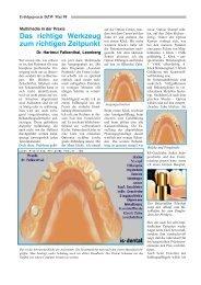 Das richtige Werkzeug zum richtigen Zeitpunkt - IS Dental