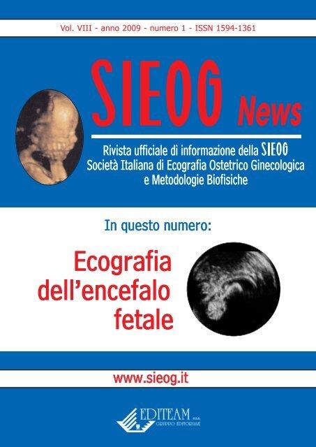 agenesia corpo calloso nei bambini
