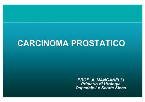 adenocarcinomainfiltrante della prostata score 7