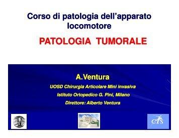 Lez. Tumori dell'Apparato Muscolo-Scheletrico - Dott. Alberto Ventura