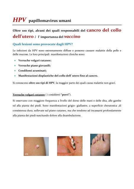 Infectia cu virusul papiloma uman (HPV) | coronatravel.ro