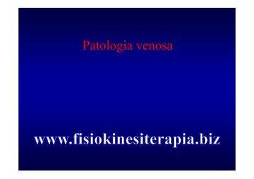trombosi venosa profonda - Fisiokinesiterapia.biz