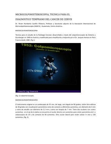 microcolpohisteroscopia, tecnica para el diagnostico temprano del ...