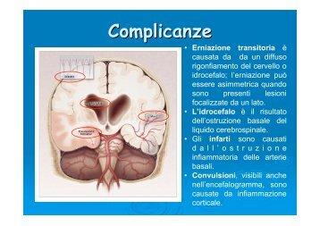 Lezione Sulla Meningite - Formazione - Home Page ...