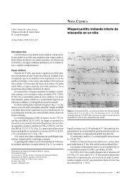 Miopericarditis imitando infarto de miocardio en un niño
