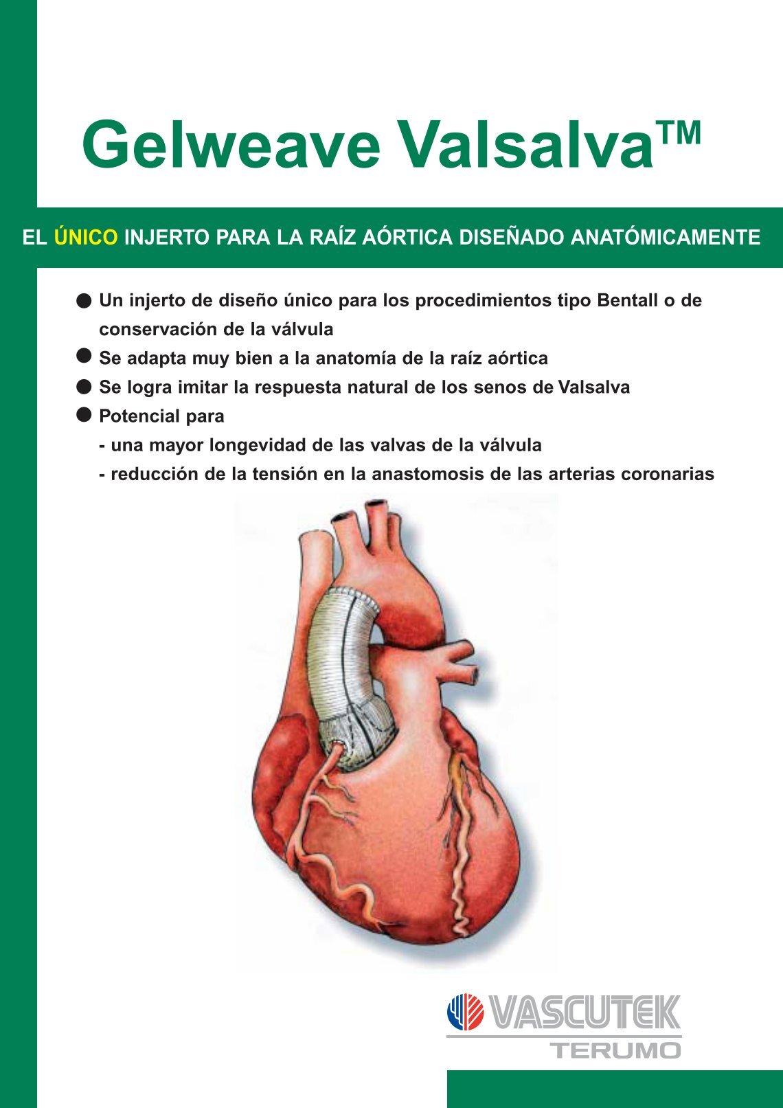 Hermosa Seno De La Anatomía De Valsalva Inspiración - Anatomía de ...