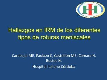 Hallazgos en IRM de los diferentes tipos de roturas meniscales