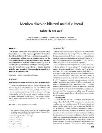 Menisco discóide bilateral medial e lateral - Ortopedista Ricardo Cury