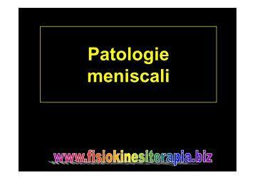 Lesioni del menisco interno - Fisiokinesiterapia.biz