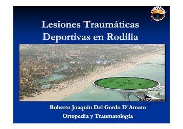 Lesiones traumaticas Deportivas en Rodilla - Bienvenidos ...