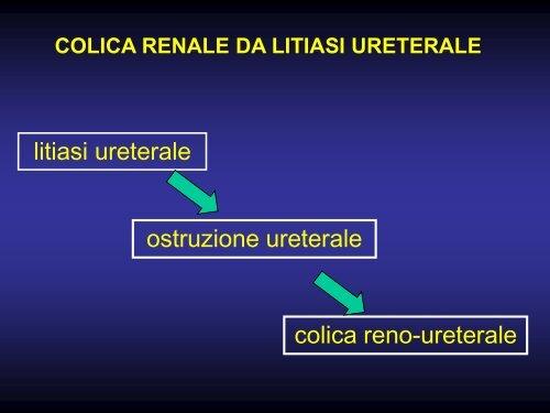 ostruzione ureterale