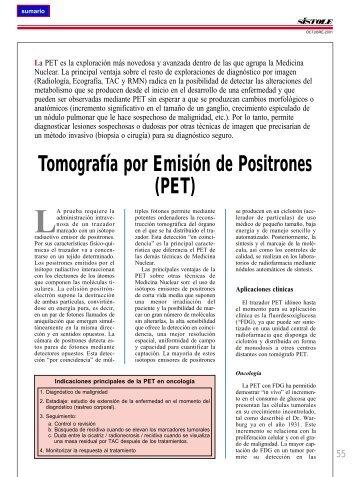 Tomografía por Emisión de Positrones (PET) - El Médico Interactivo